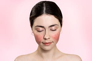 6 common health conditions linked to rosacea