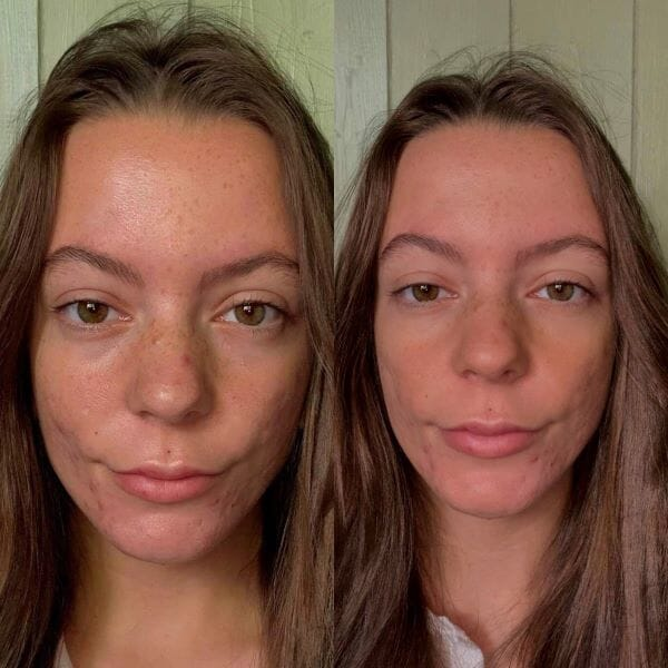 There's no need to cover acne-prone skin to make it look beautiful – three testers try out a new Nordic no cover no colour foundation primer with stunning results