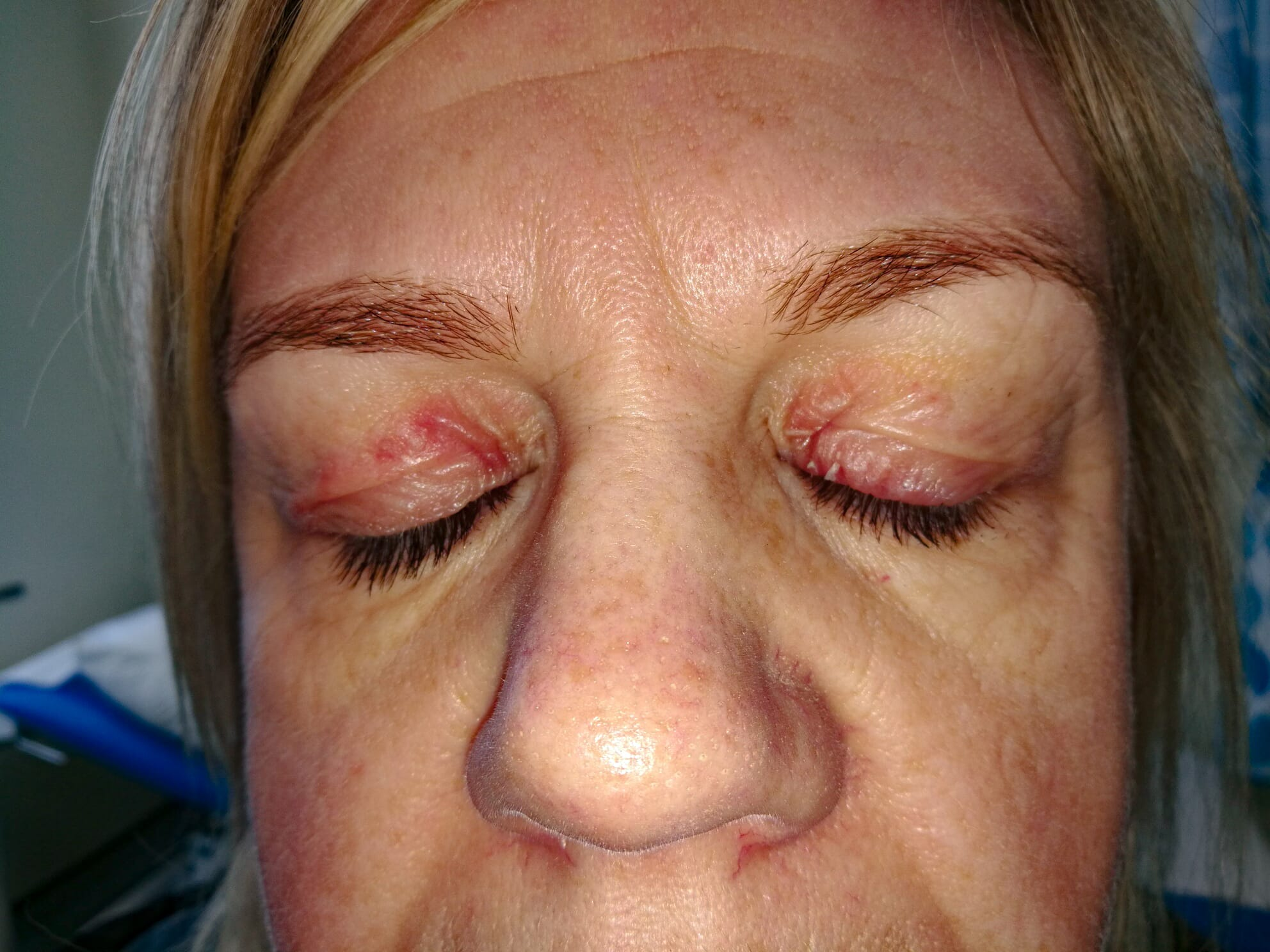 eye cream with steroids